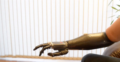 prosthetic-arms-are-becoming-increasingly-more-realistic